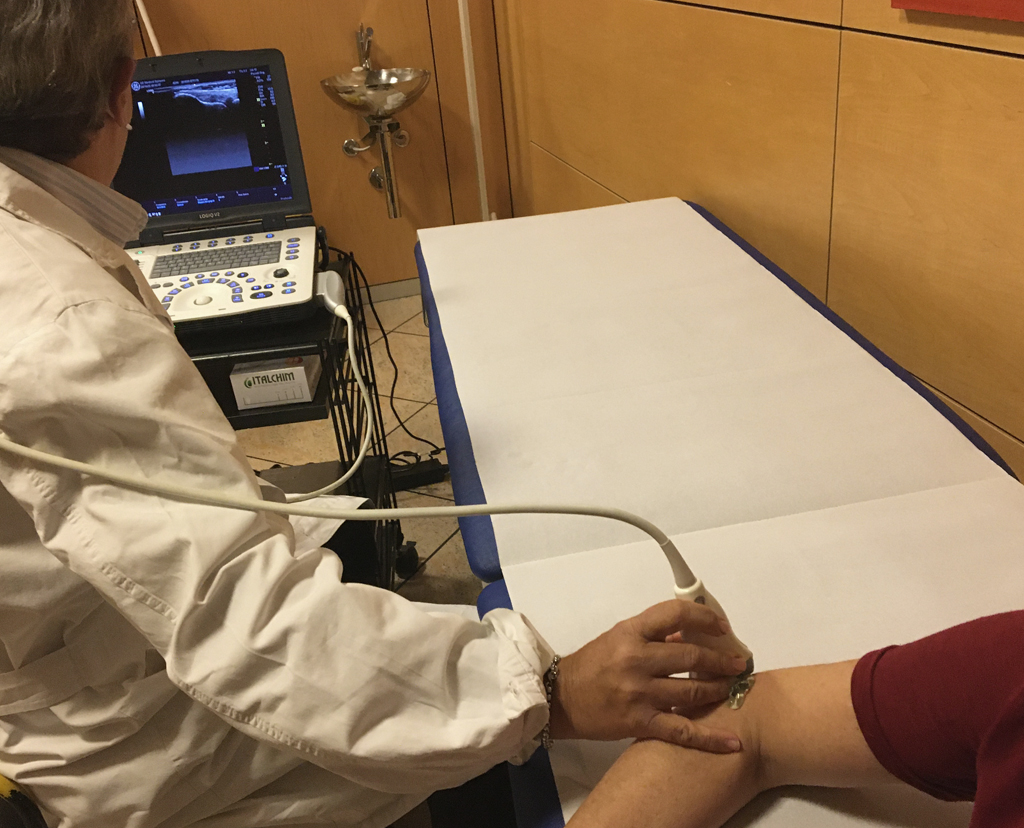 ecografia muscolo tendinea bologna
